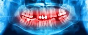 Oral-Pathology-edited