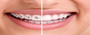 orthodontics-final